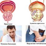 Хронический простатит и бесплодие